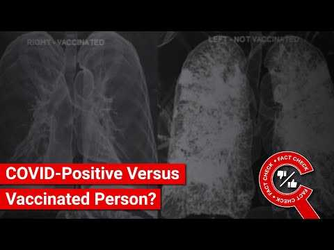 FACT CHECK: Do Images Show Lungs of COVID-Positive Versus Vaccinated People?